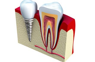 risks of dental implants