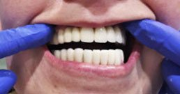 tooth implant reviews