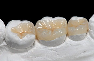 Dental inlay