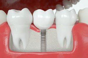 dental-abroad