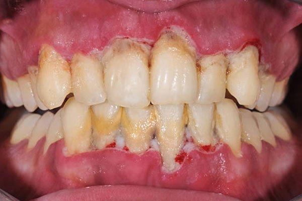 dental-plaque